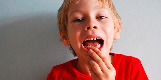 diente de leche